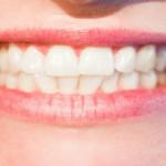 Cuánto cuesta un Blanqueamiento dental