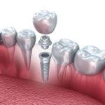 Cuanto cuesta un implante dental
