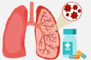 medicamentos para la neumonía