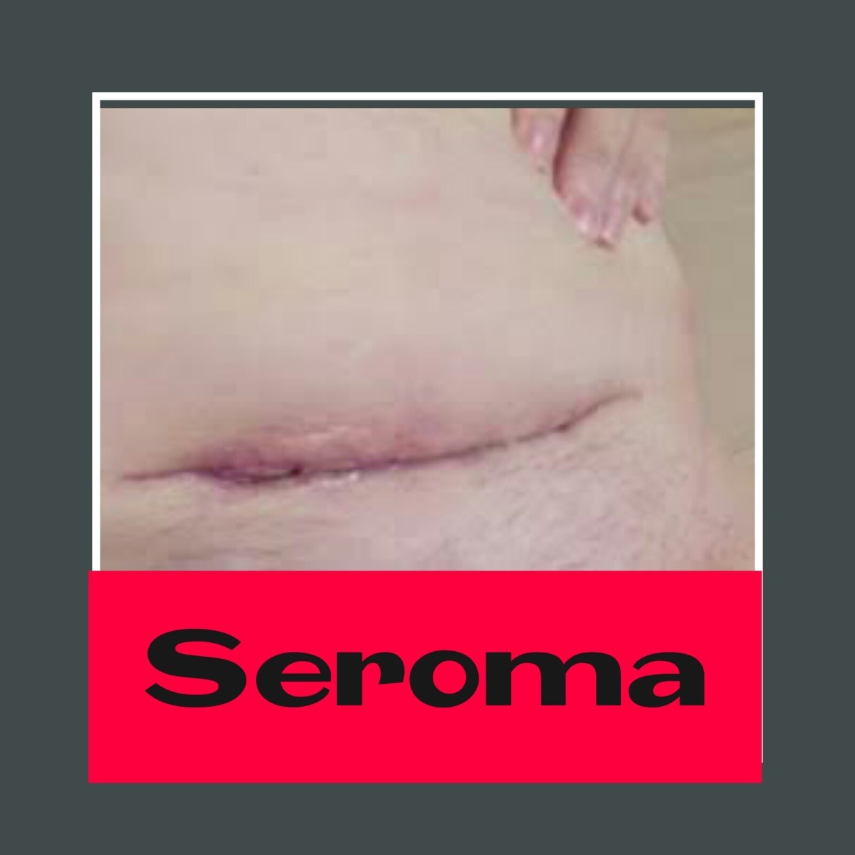 Como curar un seroma de cesarea en casa