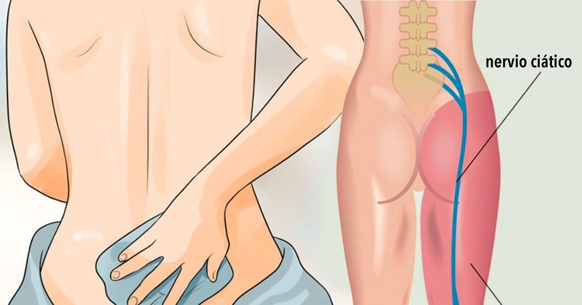 ¿Cuánto dura la ciática durante el embarazo?
