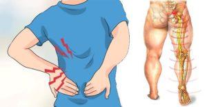 Tratamiento y ayuda fisioterapéutica para la recuperación rápida