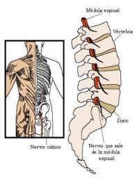 Causas del dolor lumbar