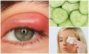 Aplicar sobre el ojo algún remedio
