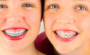 ¿Cómo saber si se necesita una ortodoncia?