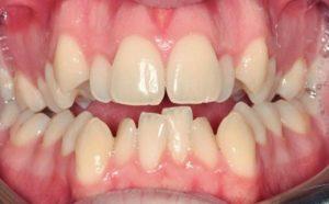 Apiñamiento de dientes
