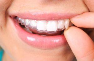 Precio ortodoncia invisible en España