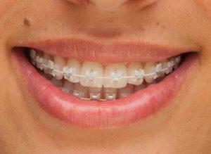 Precio de la ortodoncia de zafiro en España