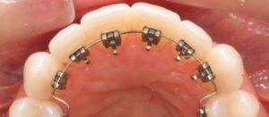 Precio de la ortodoncia lingual en España