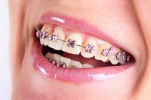 Precio de la ortodoncia tradicional en España