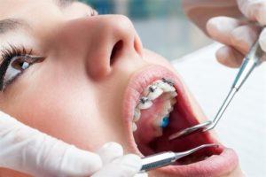 Revisiones en el ortodoncista