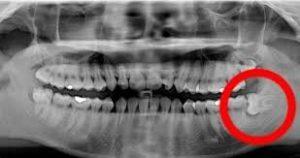 infección que haya destruido un parte del diente o el hueso