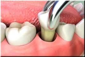 También nos encontramos casos en que en la boca no hay suficiente espacio, y se deben de quitar muelas para expandir el mismo. ¿Qué hacer luego de una extracción de muela?