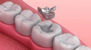 Tipos de empaste dental