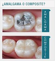 Empaste dental metálico