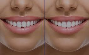 ¿Quién puede realizar un empaste dental?