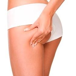 Zonas en las que se aplica la liposucción